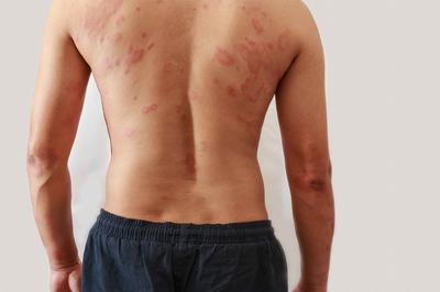 牛皮癣疾病常见的几种症状 牛皮癣症状的不同类型