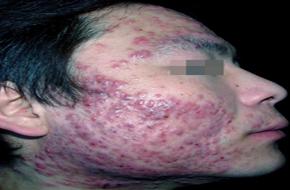 初期脓疱型牛皮癣有什么症状